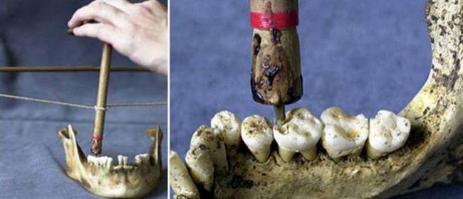 Хората лекуваха зъбите си преди 14 000 години - и това не беше приятно