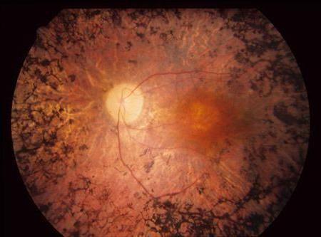 пигментен ретинит снимка