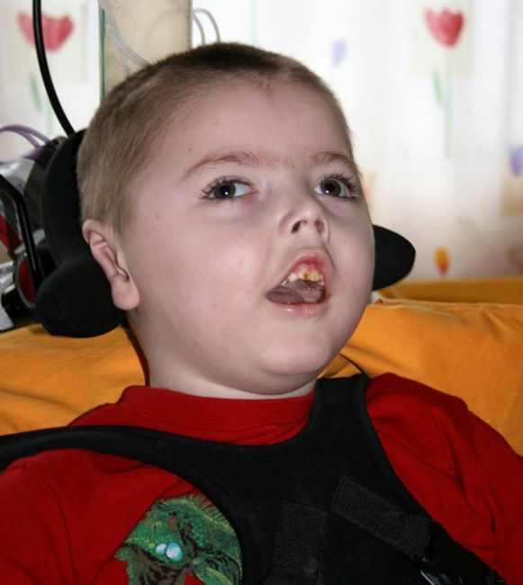 верален синдром при деца под една година